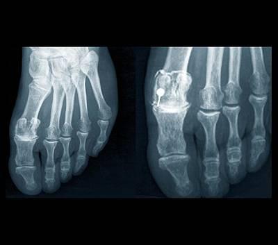 Osteoarthritis Of The Foot Art Print