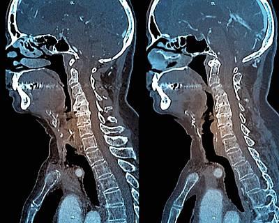 Osteoarthritis Of The Neck Art Print