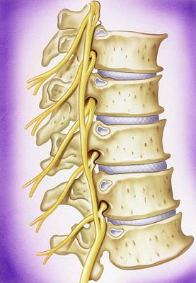 Stiff Photograph - Osteoarthritis Of Vertebrae by John Bavosi