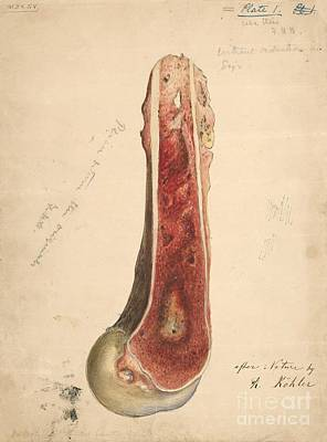 Osteomyelitis After Gunshot Wound, 1860s Print by Manuscripts And Archives Division