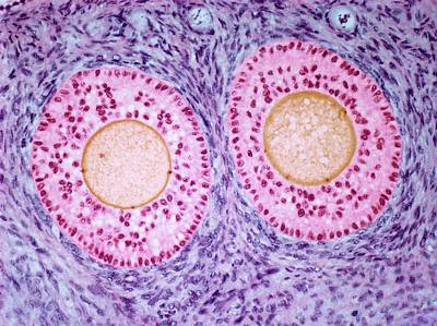 Ovarian Follicles Art Print by Steve Gschmeissner