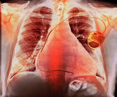 Electronics Photograph - Pacemaker In Heart Disease by Dr P. Marazzi