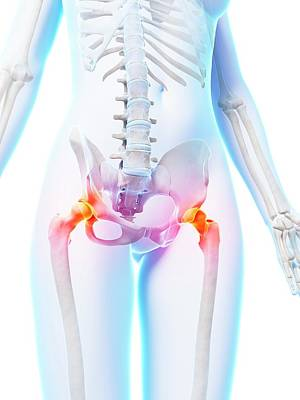 Painful Human Hip Joints Art Print