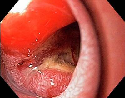 Endoscopy Photograph - Pancreatic Cancer by Gastrolab