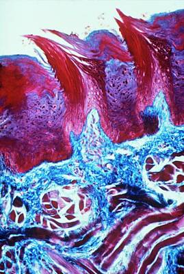 Papillae On Tongue Art Print by Overseas/collection Cnri/spl