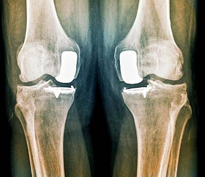 Human Joint Photograph - Partial Knee Replacement by Zephyr