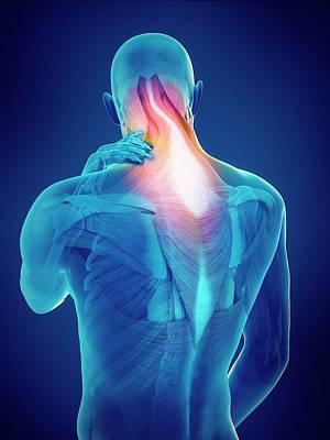 Person With Neck Pain Art Print by Sebastian Kaulitzki/science Photo Library