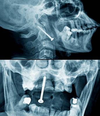 C1 Photograph - Pinned Broken Neck by Zephyr