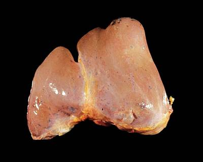 Defects Photograph - Polycystic Liver by Cnri