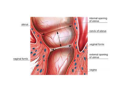 Vagina Photograph - Postpartum Cervix by Asklepios Medical Atlas