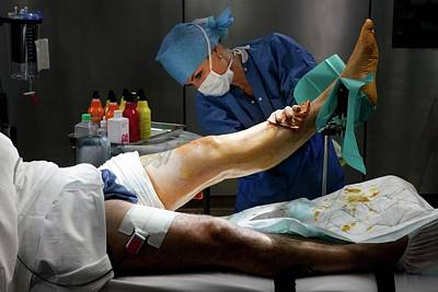 Total Knee Replacement Photograph - Preparation For Knee Surgery by Patrick Landmann