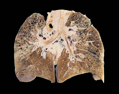 Primary Lung Cancer Art Print by Microscape