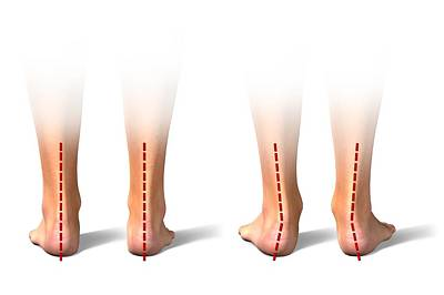 Pronation Of The Feet. Artwork Art Print by Science Photo Library
