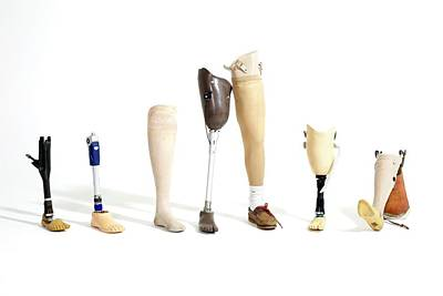 Amputee Photograph - Prosthetic Legs by Gregory Davies