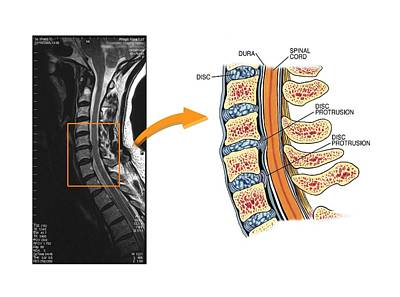 Mri Photograph - Protruding Discs In The Cervical Spine by John T. Alesi