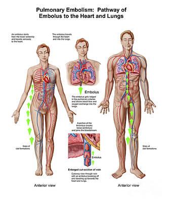 Pulmonary Embolism, Pathway Of Embolus Art Print by Stocktrek Images