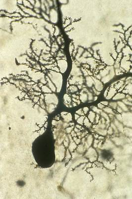 Fibrous Photograph - Purkinje Nerves Cell by Overseas/collection Cnri/spl