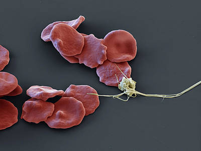 Photograph - Red Blood Cells And Platelet, Sem by Eye of Science