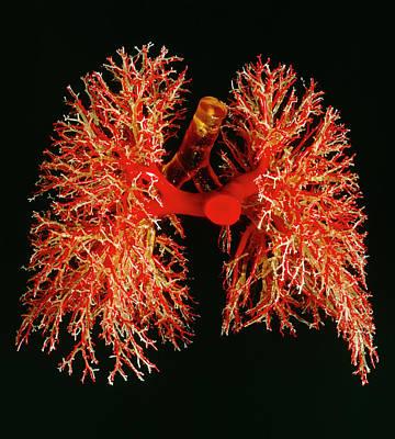 Resin Cast Of Pulmonary Arteries And Bronchi Art Print