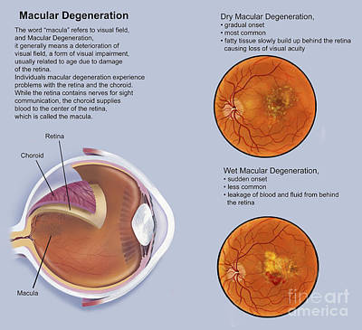 Ophthalmology Digital Art - Retina With Macular Degeneration by TriFocal Communications