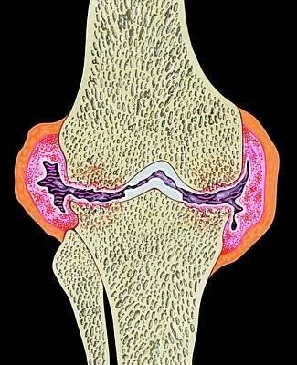 Rheumatoid Arthritis Art Print by John Bavosi