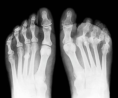 Rheumatoid Arthritis Of The Feet Art Print