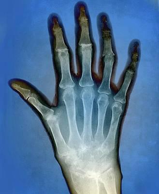 Rheumatoid Arthritis Of The Hand Art Print