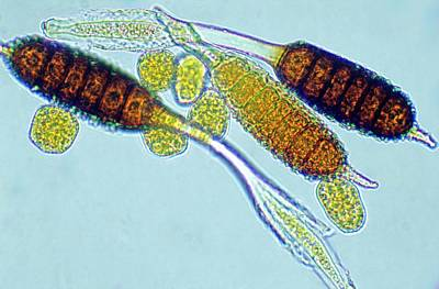 Biological Plant Photograph - Rose Spot Fungus Spores by Dr Keith Wheeler