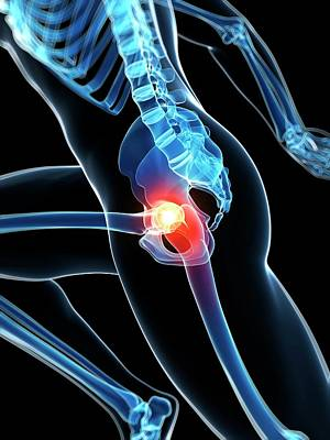 Biomedical Illustration Photograph - Runner's Hip Joint by Sebastian Kaulitzki