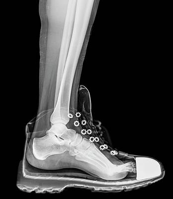 Running Shoe X-ray Art Print by Photostock-israel