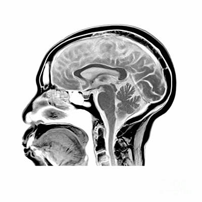 Sagittal Mri Of The Brain Art Print by Medical Body Scans