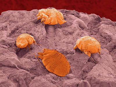 Sarcoptes Parasitic Mites Art Print