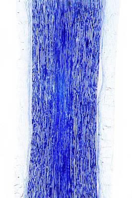 Sciatic Nerve Art Print