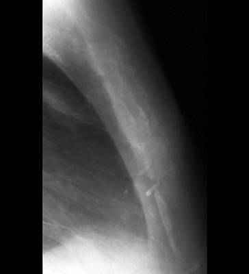 Cancer Photograph - Secondary Bone Cancer by Zephyr