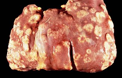 Secondary Cancers Of The Liver Art Print by Cnri