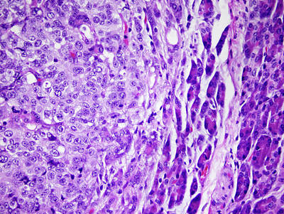 Cancer Photograph - Secondary Pancreatic Cancer by Richard Lee, National Cancer Institute