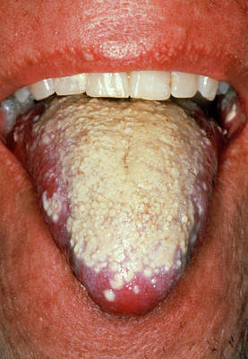 Thrush Wall Art - Photograph - Severe Oral Candidiasis (thrush) Affecting Tongue by Science Photo Library
