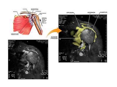 Human Joint Photograph - Shoulder Bursa Injury by John T. Alesi