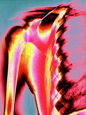 Shoulder Art Print by Larry Berman