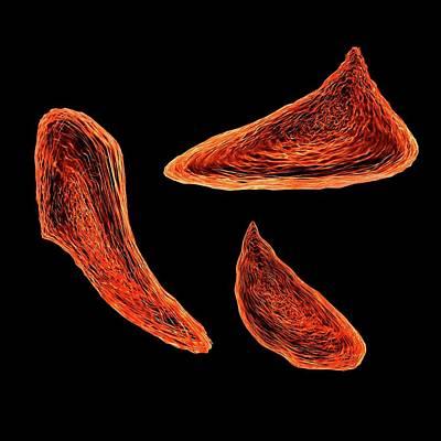 Sickle Cell Anaemia Art Print by Mehau Kulyk