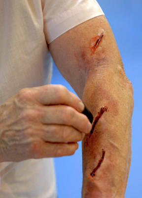 Simulated Photograph - Simulated Arm Lacerations by Public Health England
