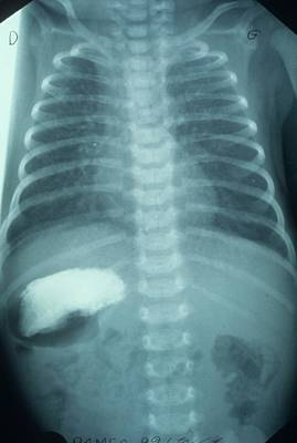 X-ray Image Photograph - Situs Inversus In A Child by Cnri