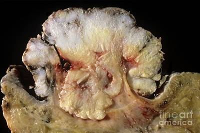 Vulva Photograph - Skin Cancer by Cnri