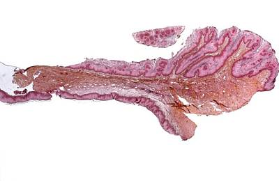 Vulva Photograph - Skin Cancer, Micrograph by Science Photo Library