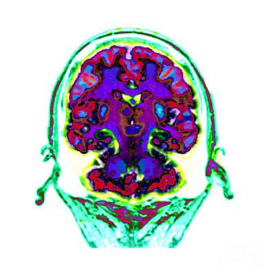 Photograph - Spect Exam Of Human Brain by Living Art Enterprises