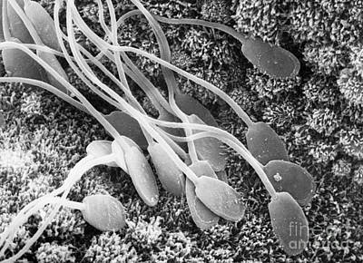 Sperm On Uterine Wall Sem Art Print by David M. Phillips