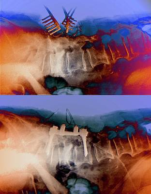 Spacers Photograph - Spinal Compression Fractures In Surgery by Zephyr