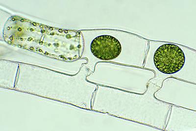 Spirogyra Reproducing Art Print