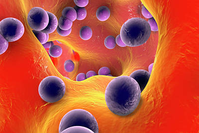 Digitally Generated Image Photograph - Staphylococcus Infection by Kateryna Kon