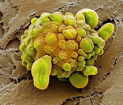 Stem Cell Dying, Sem Art Print by Science Photo Library